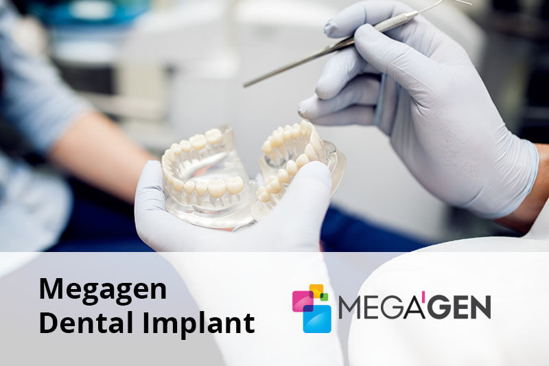 Megagen Dental Implant senior software